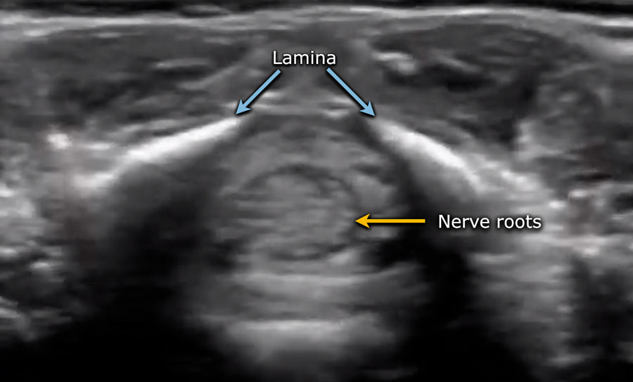 The Radiology Assistant Ultrasound Of The Neonatal Spine Volk} section of the terminal filum for occult tethered cord syndrome: ultrasound of the neonatal spine