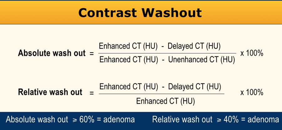 Adrenal Washout Calculator CT   Adrenal Adenoma v/s Others