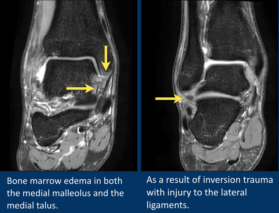 The Radiology Assistant Mri Examination Of The Ankle