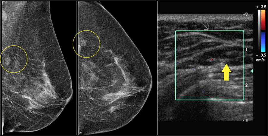 The Radiology Assistant Bi Rads For Mammography And Ultrasound 2013