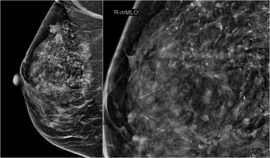 The Radiology Assistant Staging And Treatment Of Breast Cancer
