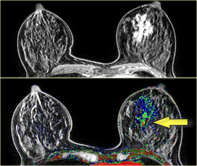 The Radiology Assistant Mri Of The Breast