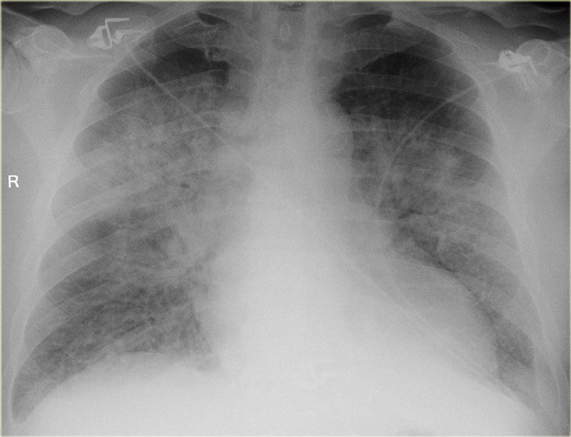 The Radiology Assistant : Chest X-Ray - Heart Failure