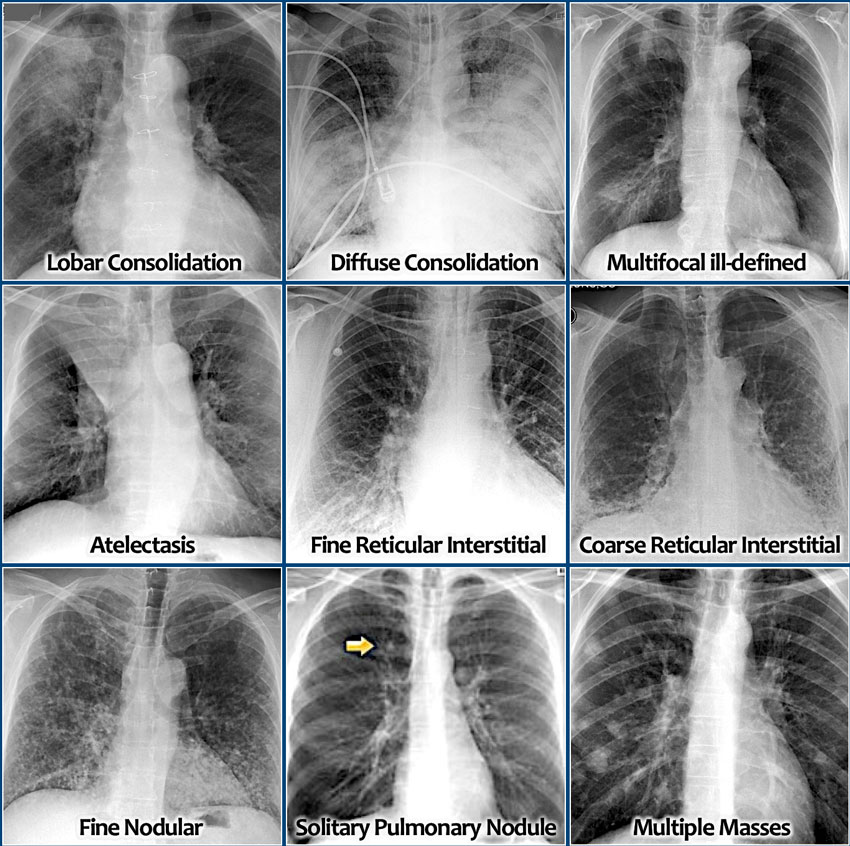 The Radiology Assistant : Chest X-Ray