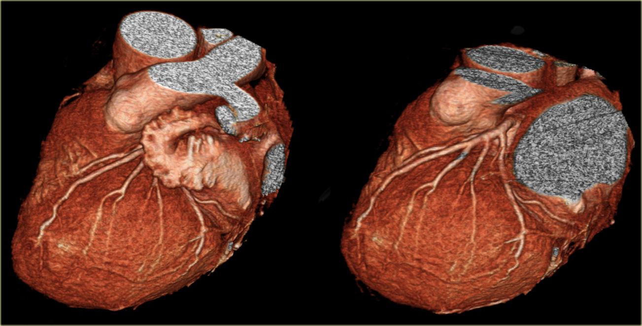 Om arteria coronaria