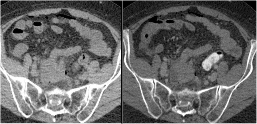 rektális rák a ct-n néhány féreghajtó terápiás szer működik
