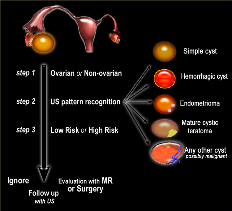 The Radiology Assistant Roadmap To Evaluate Ovarian Cysts