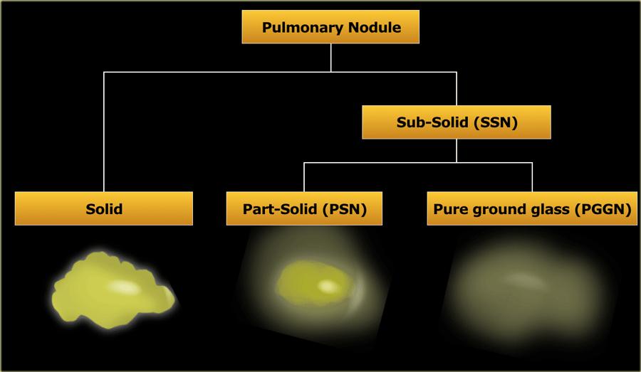 Fleischner 2017 guideline for pulmonary nodules