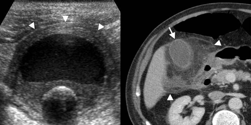 The Radiology Assistant   Gallbladder