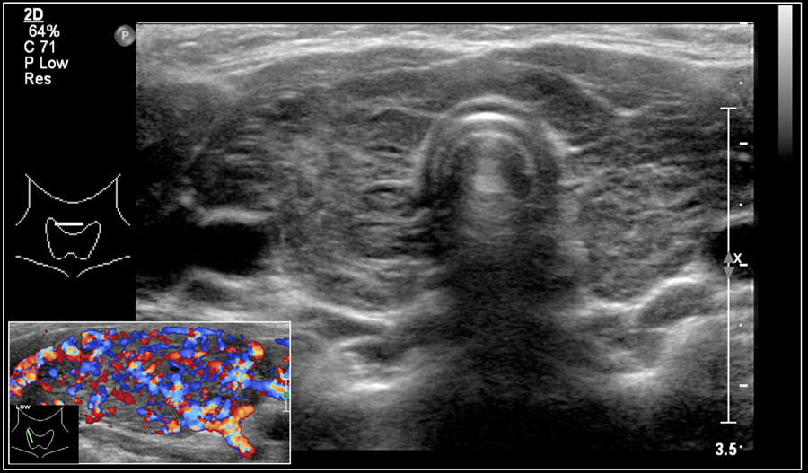The Radiology Assistant Neck Masses In Children