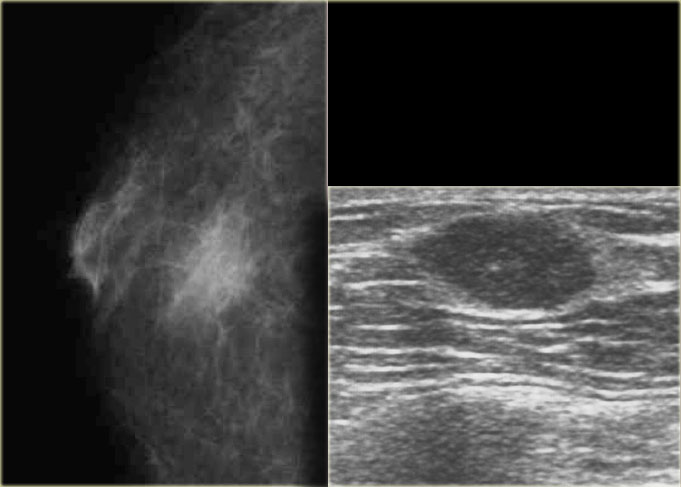 The Radiology Assistant Pathology Of The Male Breast