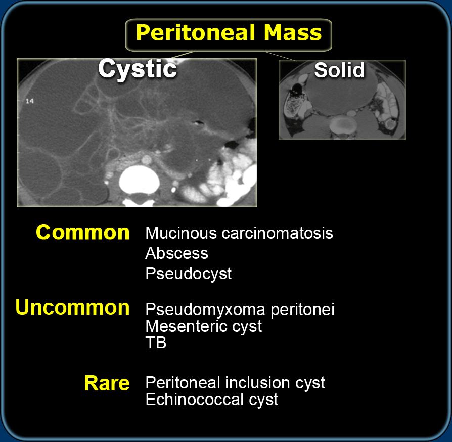 Peritoneális rák biodekódolása, Rákellenes gyógyszerek