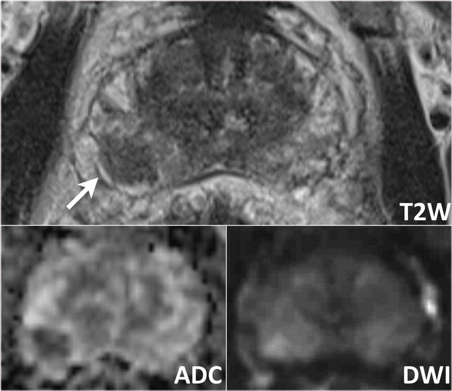 multiparametric prostate mri radiology assistant)