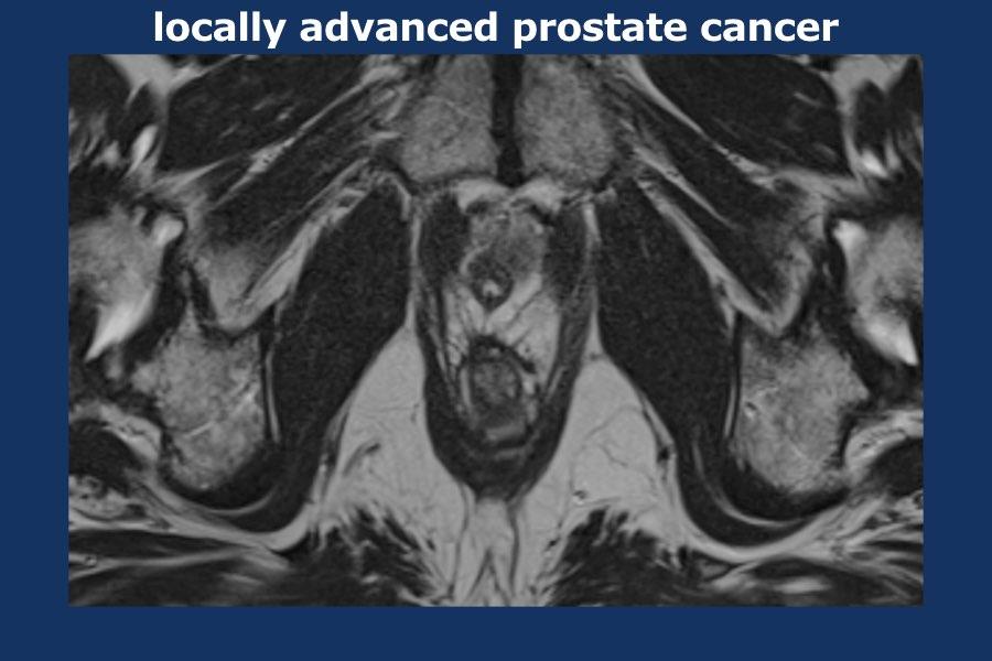 mri prostate radiology
