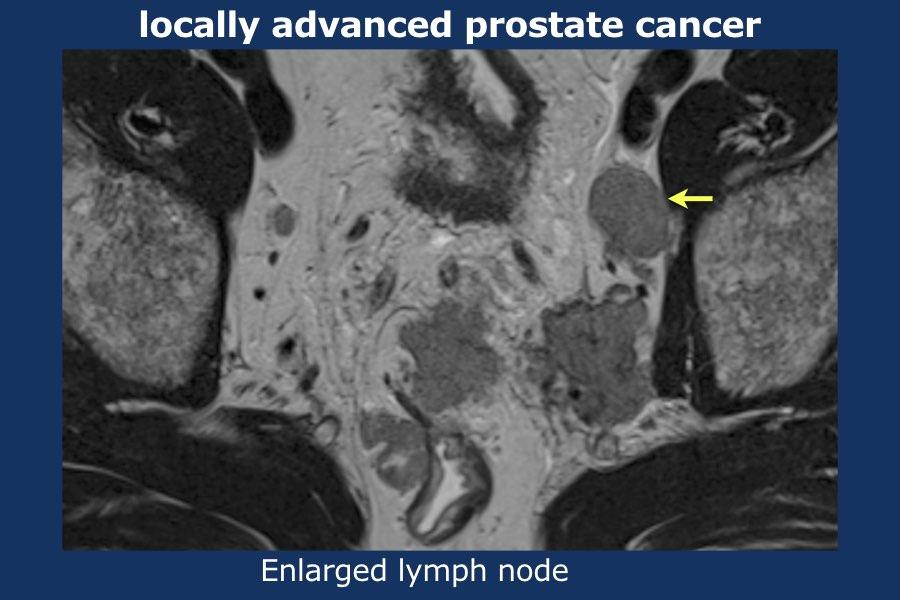 adenocarcinoma prostata classificazione gleason 8