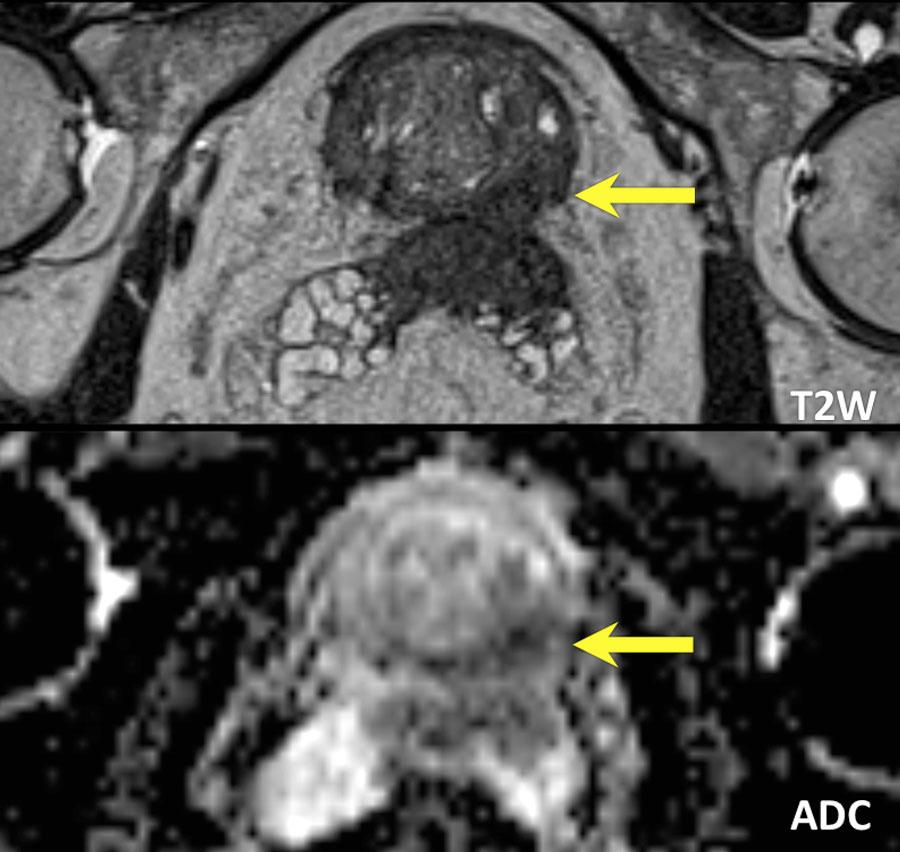 cáncer de próstata pi rads 4 mri