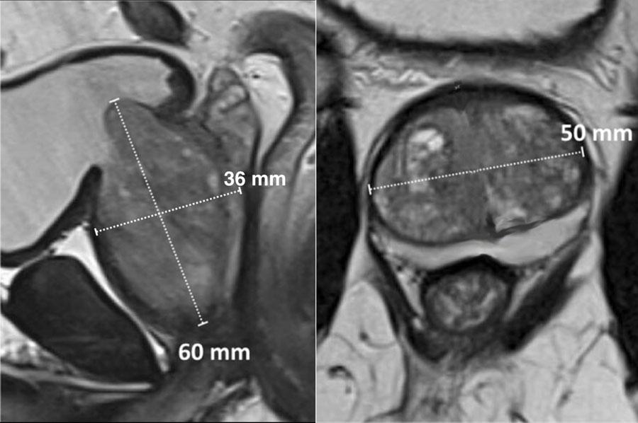 Prostatitis az MRI- nál)