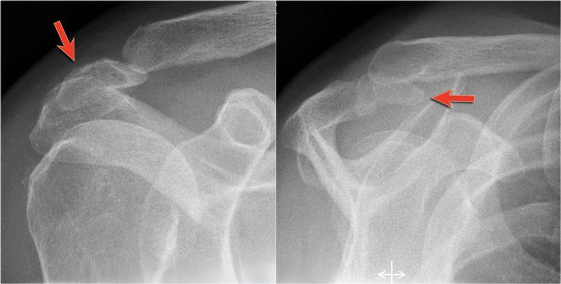The Radiology Assistant Shoulder Mr Anatomy