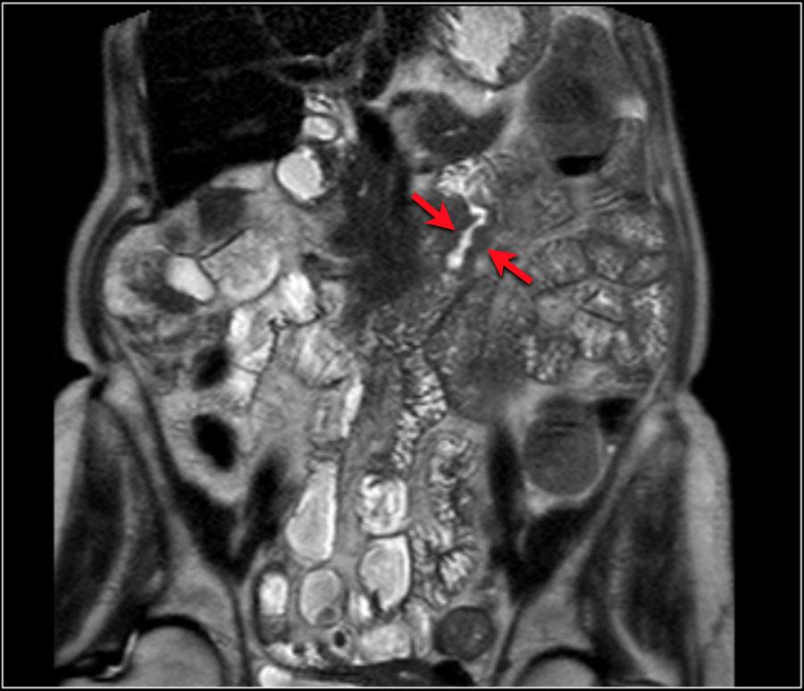 Rectal cancer venous invasion mri, Rectal cancer in mri