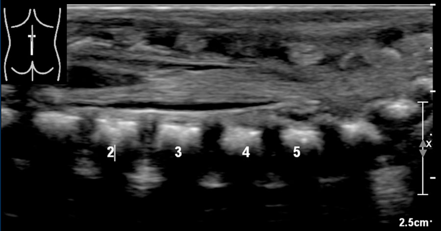 The Radiology Assistant Ultrasound Of The Neonatal Spine Meaning of filum terminale medical term. ultrasound of the neonatal spine