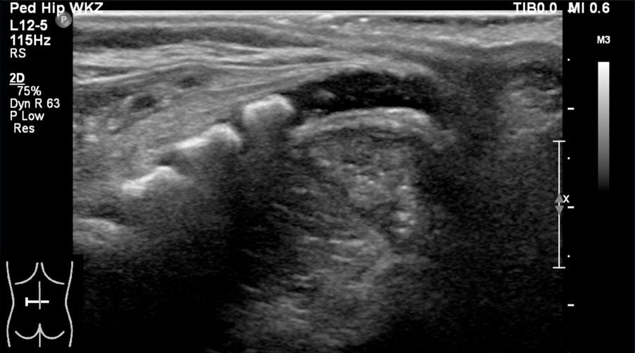 The Radiology Assistant Ultrasound Of The Neonatal Spine Six out of 15 (40%) ultrasound. ultrasound of the neonatal spine