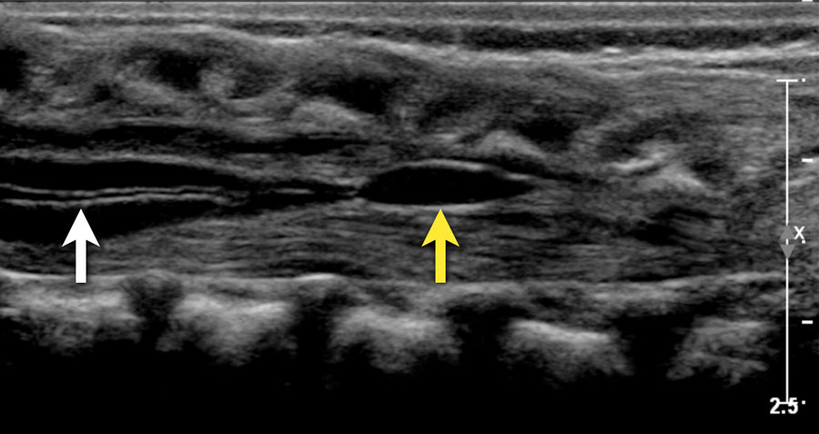 The Radiology Assistant Ultrasound Of The Neonatal Spine On imaging, the entire length or a segment of the filum terminale is thickened. ultrasound of the neonatal spine