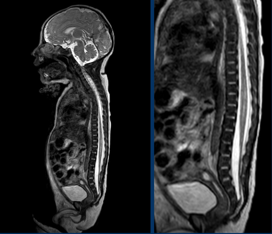 The Radiology Assistant Ultrasound Of The Neonatal Spine These malformations are more common than lipomyelomeningoceles and greater than 90% are recognizable on ct or mri.23 the finding of a thickened filum terminale and a caudally descended conus medullaris are sufficient for the diagnosis.23. ultrasound of the neonatal spine