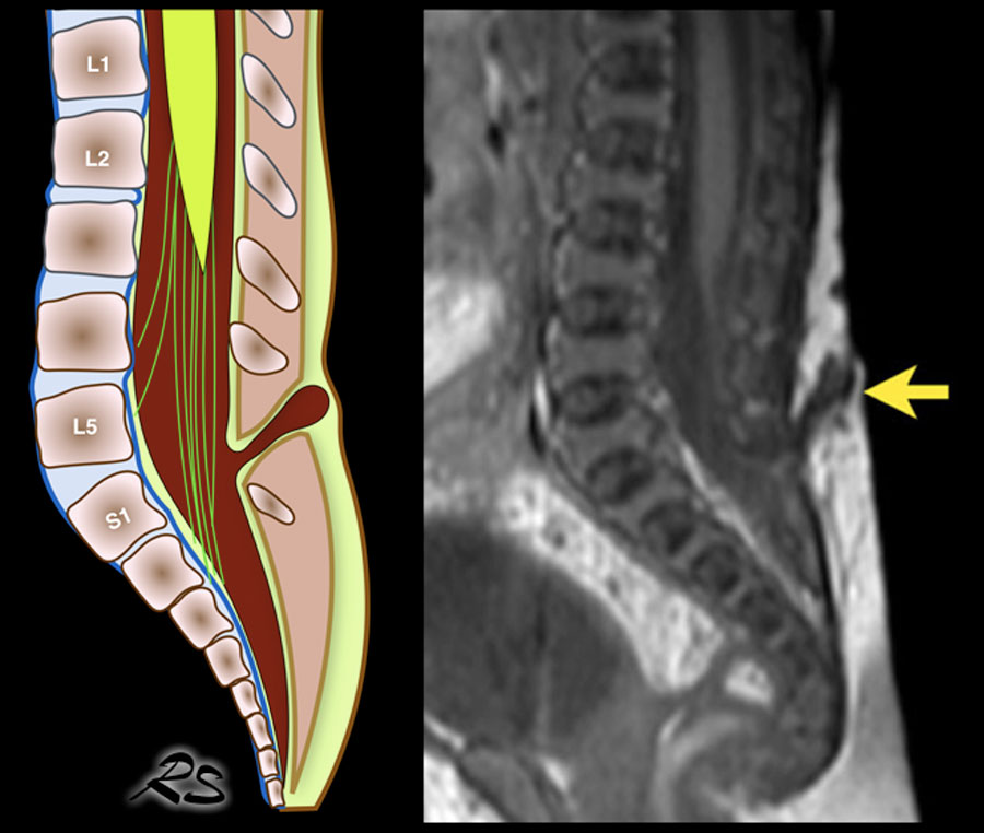 The Radiology Assistant Ultrasound Of The Neonatal Spine The filum terminale, or terminal filament, is a slender flexible strand that attaches the bottom of the spinal cord to a bone called the coccyx at the lower the spinal cord tapers at its lower end into the conus medullaris and from the pointed end a strand of the pia mater protrudes, becoming the filum. ultrasound of the neonatal spine