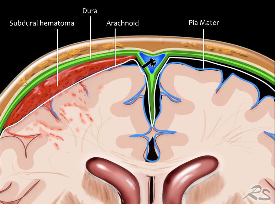Epidural hematoma subdural hematoma vs Subdural vs