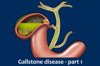 Gallbladder obstruction