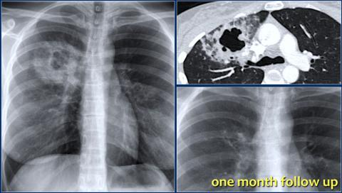 The Radiology Assistant Lung Disease