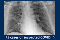 32 cases of suspected COVID-19