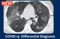 COVID-19  Differential Diagnosis