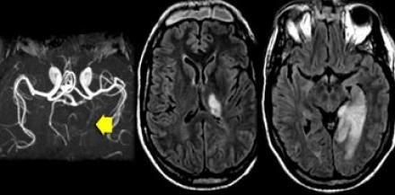 dementia multi infarct pdf