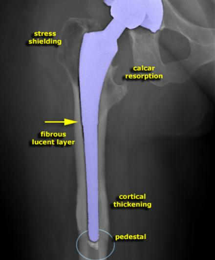 the radiology assistant   hip