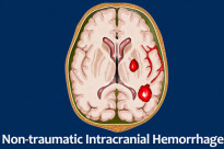 Non-traumatic Intracranial Hemorrhage
