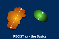 RECIST 1.1 - the basics