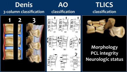 The Radiology Assistant Spine Injury Tlics Classification