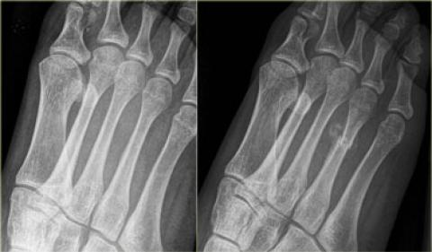 The Radiology Assistant Stress Fractures