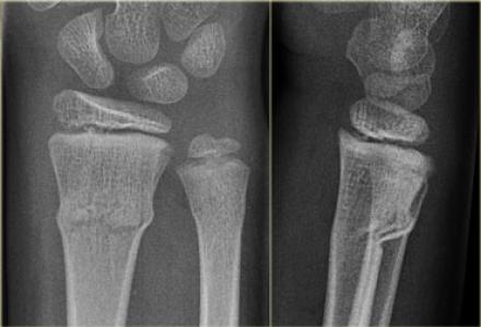 The Radiology Assistant : Wrist - Fractures